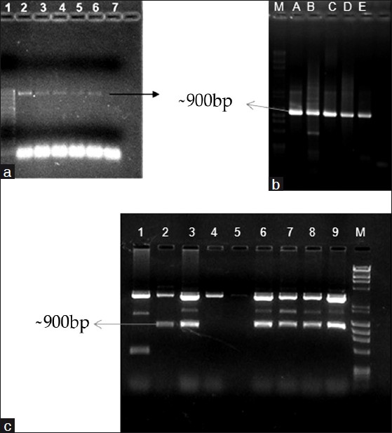 Figure 1: PCR amplicons of HtrA from Wu. bancrofti genomic DNA: (a) 1-100 bp ladder; 2-6 genomic DNA; 7 negative control. Colony PCR with gene specific PCR showing amplicons (b) and ECoRI digestion of plasmids (c) showing the inserts (~900 bp). A-E, 2-3, 6-9 are positive clones (white colonies); 4-5 negative control (blue colonies); 1 kit control