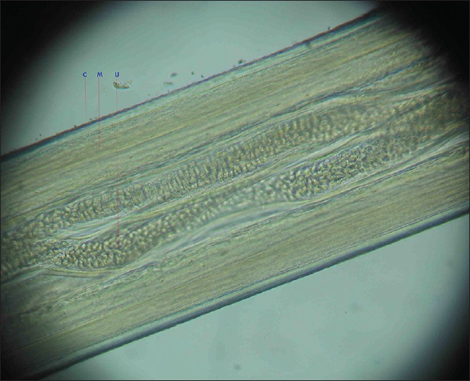 Figure 4: Microscopic view showing the well-developed muscle layer and uteri of the female worm. (C-Multi layered cuticle, M-Musclelayer, U-Uterinecavity)