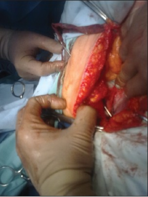 Figure 2: Probe placed through the external opening of the fistula