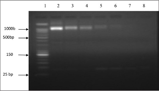 Figure 1: Detection sensitivity by ShND-1/ShND-2 polymerase chain reaction using different concentrations of Schistosoma haematobium genomic deoxyribonucleic acid: Lane 1: Deoxyribonucleic acid (DNA) size marker (Bioneer 25/100 bp Mixed DNA Ladder); lane 2: 10 ng; lane 3: 1 ng; lane 4: 0.1 ng; lane 5: 10 pg; lane 6: 1 pg; lane 7: 0.1 pg; lane 8: Negative control (no DNA)