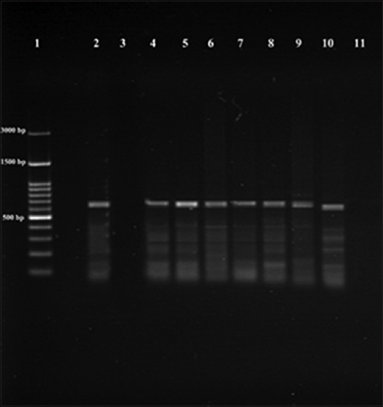 Figure 2: Polymerase chain reaction amplification of kinetoplast DNA, the bands shown on 1.5% agarose gel stained with ethidium bromide. Lane 1 ladder, Lane 2 positive control, Lane 3 negative control, Lane 4, 5 spleen, Lane 6, 7 lymph node, Lane 8, 9 liver, Lane 10, 11 skin after subcutaneous and intraperitoneal inoculation respectively; positive samples at 650 bp