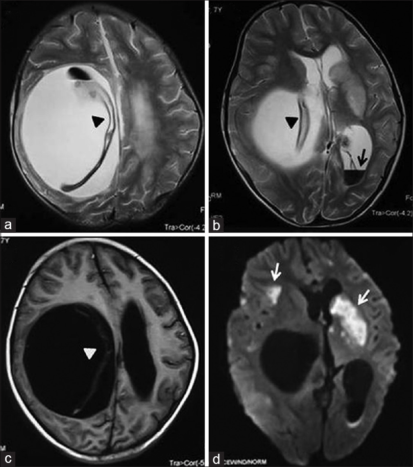 Figure 22: Magnetic resonance imaging axial T2-weighted (a and b), T1-weighted (c) and diffusion-weighted (d) images of brain show a well-circumscribed cystic lesion in right cerebral hemisphere with detached germinal membrane (arrow heads) and intraventricular rupture (black arrow) causing mass effect and multiple brain infarcts (white arrow)