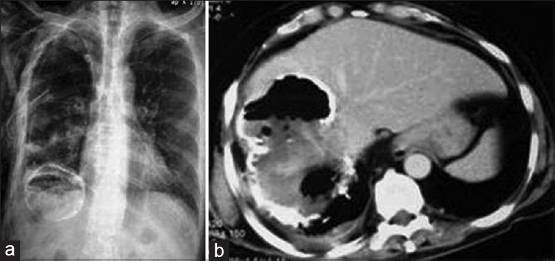 Figure 7: X-ray chest (a) and contrast-enhanced computed tomography of abdomen (b) show partially-calcified liver hydatid cyst with intracystic air and right pleural effusion, suggesting super-infection and rupture into the thoracic cavity