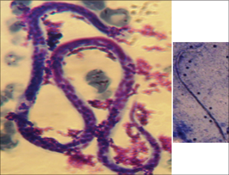 Figure 1: . Microfilaria of <i>Wuchereria bancrofti</i> seen in Ziehl-Neelsen-stained urine and (inset) Giemsa-stained peripheral blood smear