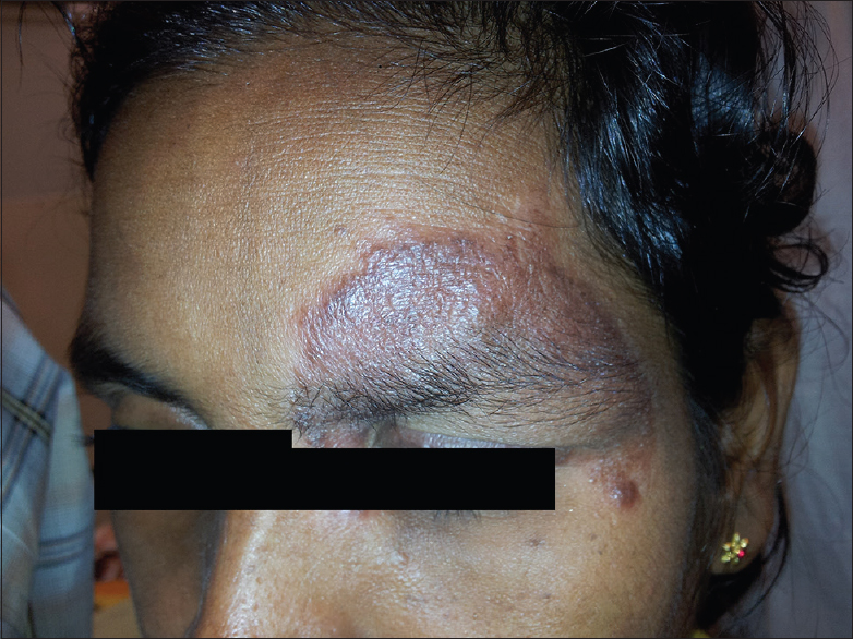 Figure 3: Lesion image of cutaneous leishmaniasis patient 8 after 21 doses of intramuscular sodium stibogluconate and 11 doses of intralesional sodium stibogluconate