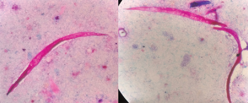 Figure 2: Modified Ziehl–Neelsen staining of stool sample showing pink-colored larvae of <i>Strongyloides stercoralis</i>