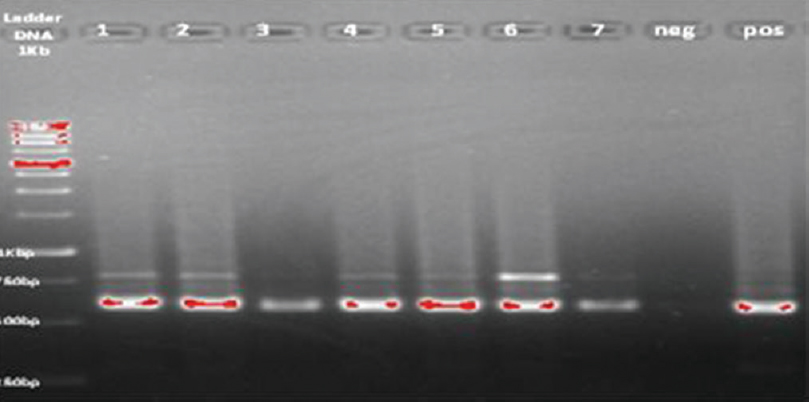 Figure 3: Detection of <i>Leishmania</i> parasite using kDNA gene, lanes1-7 patients samples, neg: Negative control, pos: Positive control