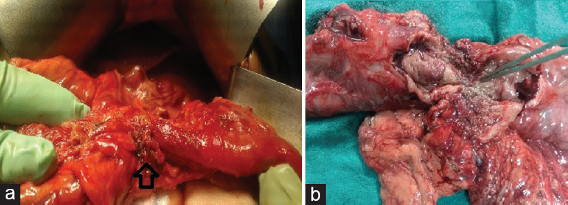 Figure 2: (a) Stricture in transverse colon (arrow) with proximal dilated colon intra-operatively; (b) cut open specimen showing stricture with ulceration (pointing forceps)