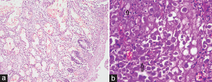 Figure 3: (a) Histopathology slides depicting-ulceration with fibrinous exudate and granulation tissue (H and E, ×10); (b) PAS stain (×40) highlighting trophozoites of <i>Entamoeba histolytica</i>