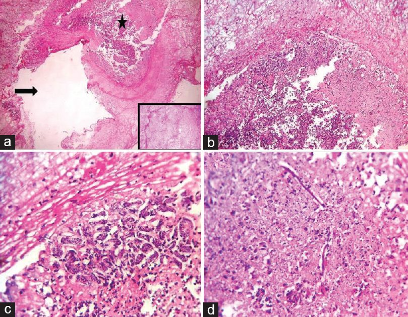 Figure 1: (a) Many dilated lymphatics (arrow) with one focus depicting the necroinflammatory debris (asterisk), fibrous obliteration of the lumen by myofibroblastic proliferation (inset) (H and E × 40), (b) neutrophilic abscess (H and E, ×100), (c and d) Aggregates of curved form of microfilariae and some linear forms of microfilariae (H and E, ×400)