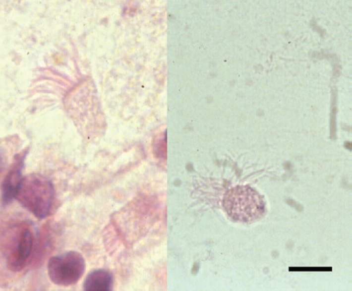 Figure 4: Stained sample of sputum showing ciliated bronchial cells (left) and <i>Lophomonas blattarum</i> (right). The cilia are regularly oriented, whereas the flagella have an irregular arrangement (Papanicolaou stain × 1000; bar, 12 μm). (Reproduced from Martinez-Giron and van Woerden)<sup>[3]</sup>